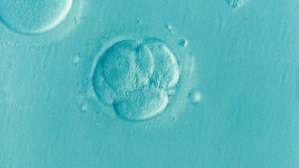 procedure of in vitro fertilization