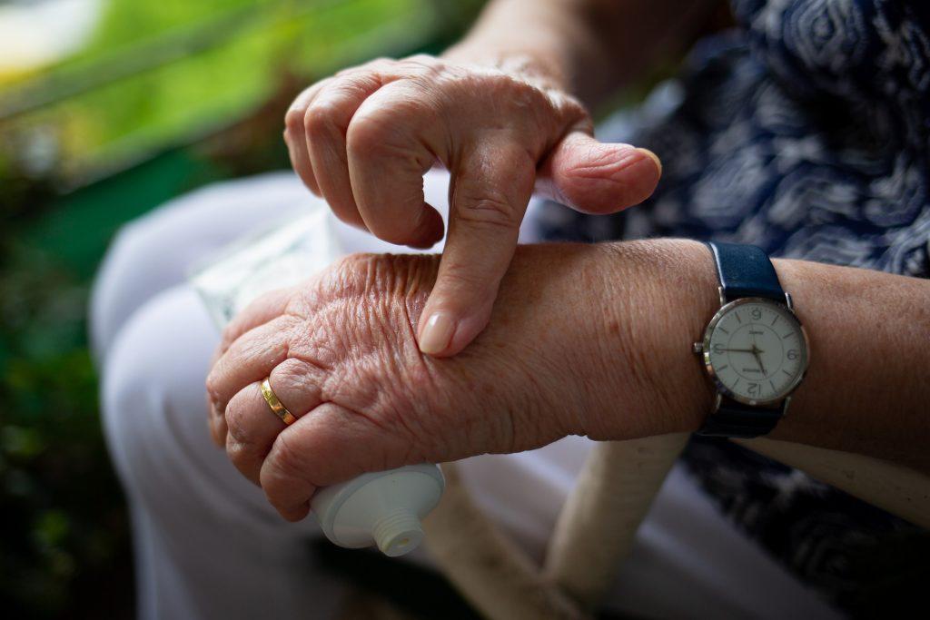 Genetics and lifestyle in arthritis