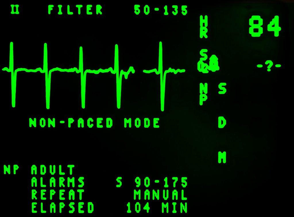 EKG patterns