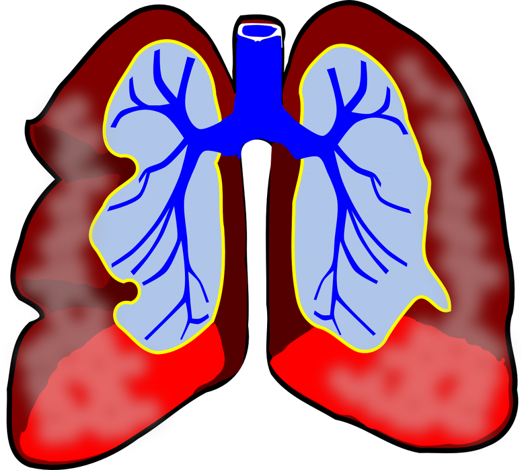 Complications of asthma