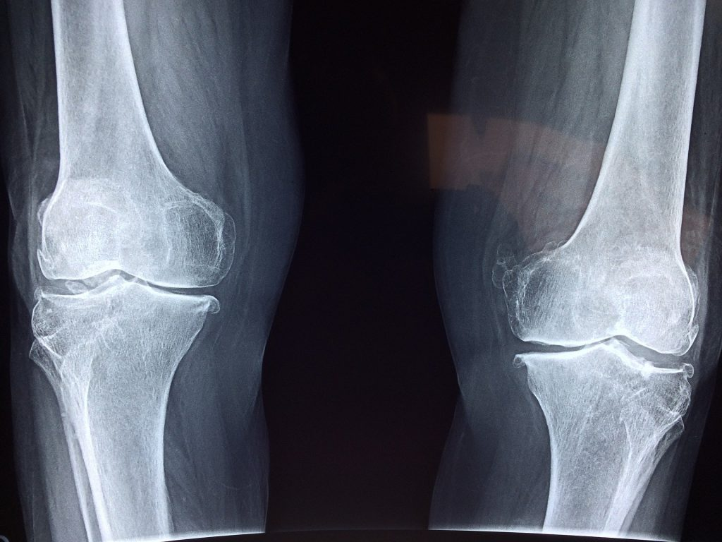 Bone growth at the articular cartilage