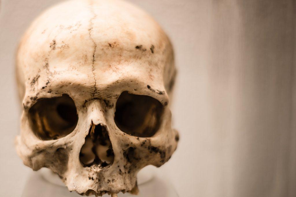 bones is part of the neurocranium